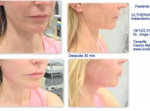 antes y despues angelica ultherapy